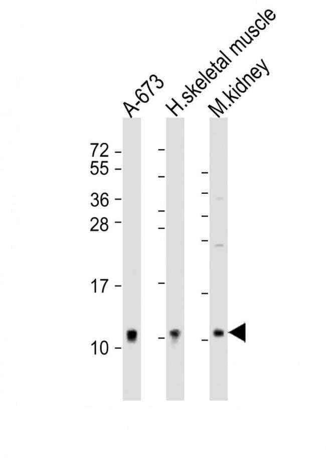 NDUFA1 Rabbit anti-Human, Mouse, Polyclonal, Invitrogen 200 µL; Unconjugated