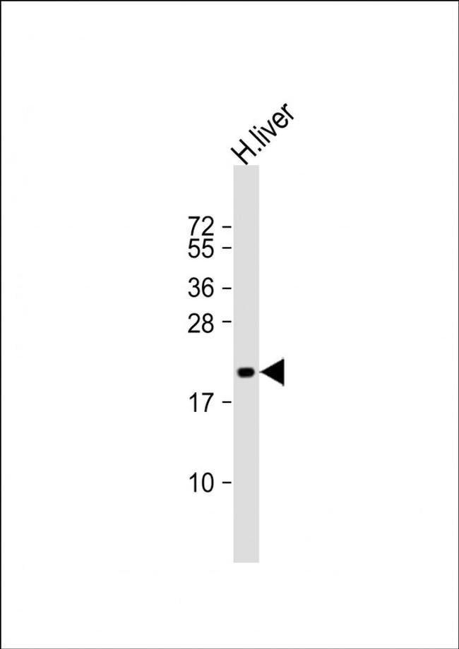 ROPN1 Rabbit anti-Human, Polyclonal, Invitrogen 200 µL; Unconjugated