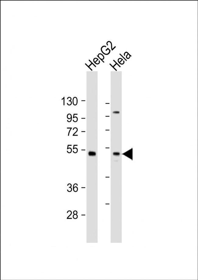 ZFP2 Rabbit anti-Human, Polyclonal, Invitrogen 200 µL; Unconjugated
