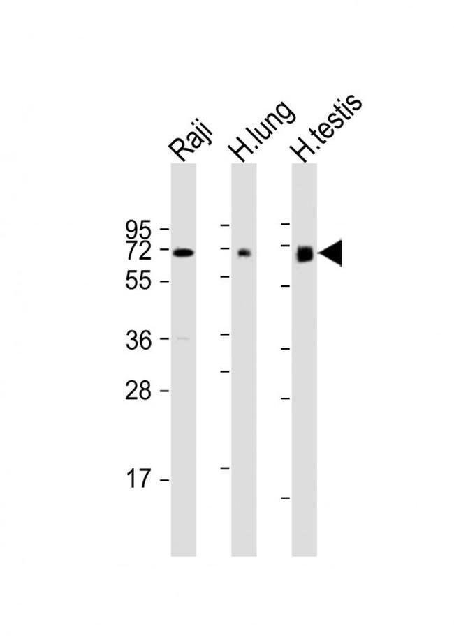 ERVK-7 Rabbit anti-Human, Polyclonal, Invitrogen 200 µL; Unconjugated