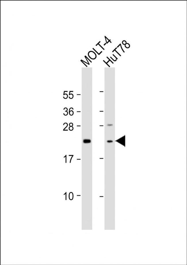 DLEU7 Rabbit anti-Human, Polyclonal, Invitrogen 200 µL; Unconjugated