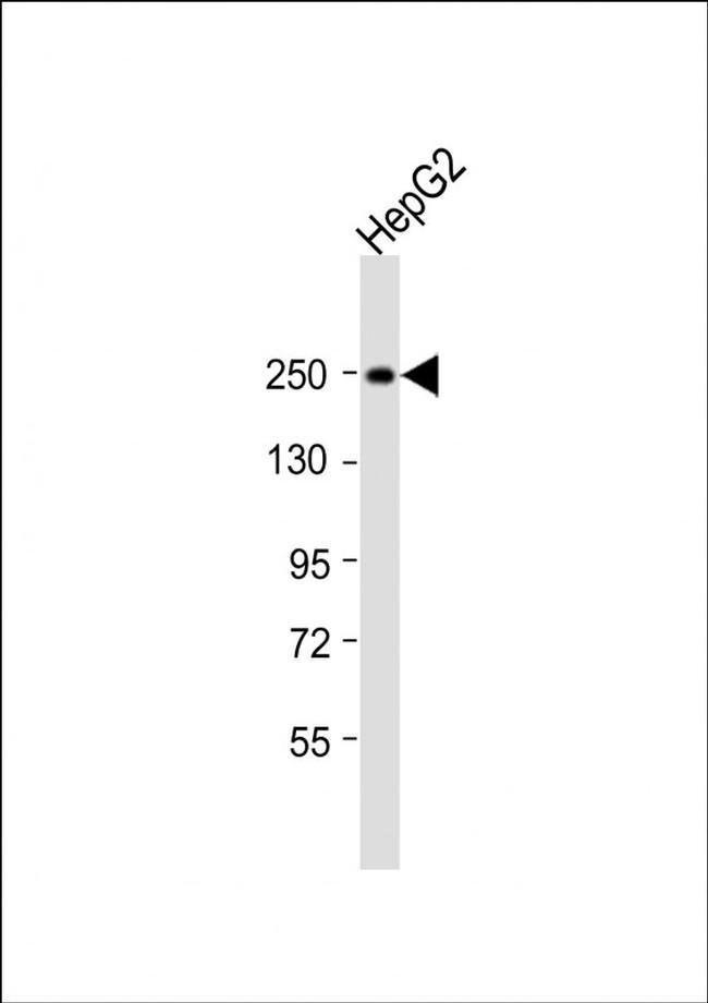MYO5B Rabbit anti-Human, Polyclonal, Invitrogen 200 µL; Unconjugated