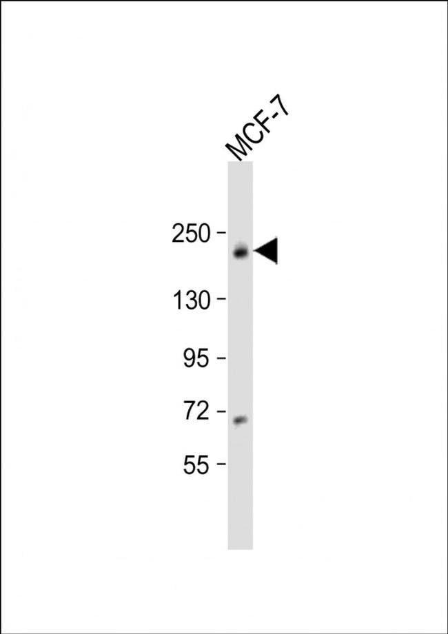 USP32 Rabbit anti-Human, Polyclonal, Invitrogen 200 µL; Unconjugated