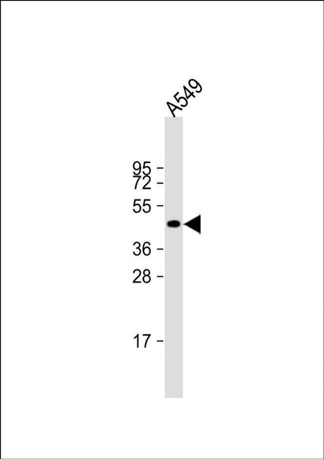 NAT16 Rabbit anti-Human, Polyclonal, Invitrogen 200 µL; Unconjugated