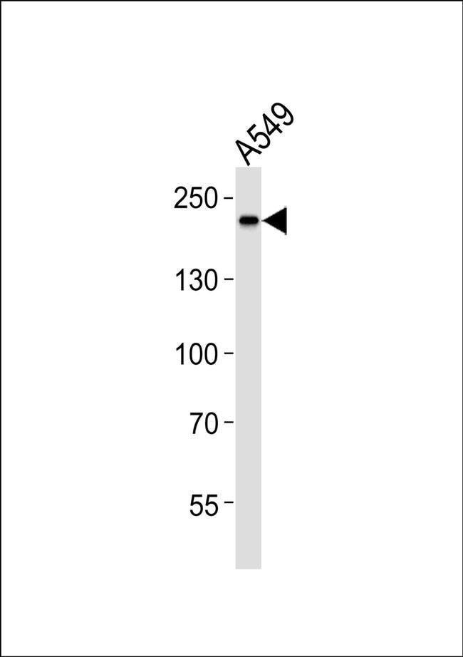SLK Rabbit anti-Human, Mouse, Rat, Polyclonal, Invitrogen 100 µL;