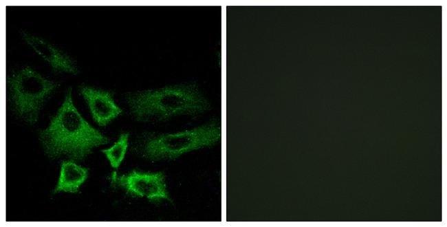 NT5C1A Rabbit anti-Human, Mouse, Polyclonal, Invitrogen 100 µL; Unconjugated