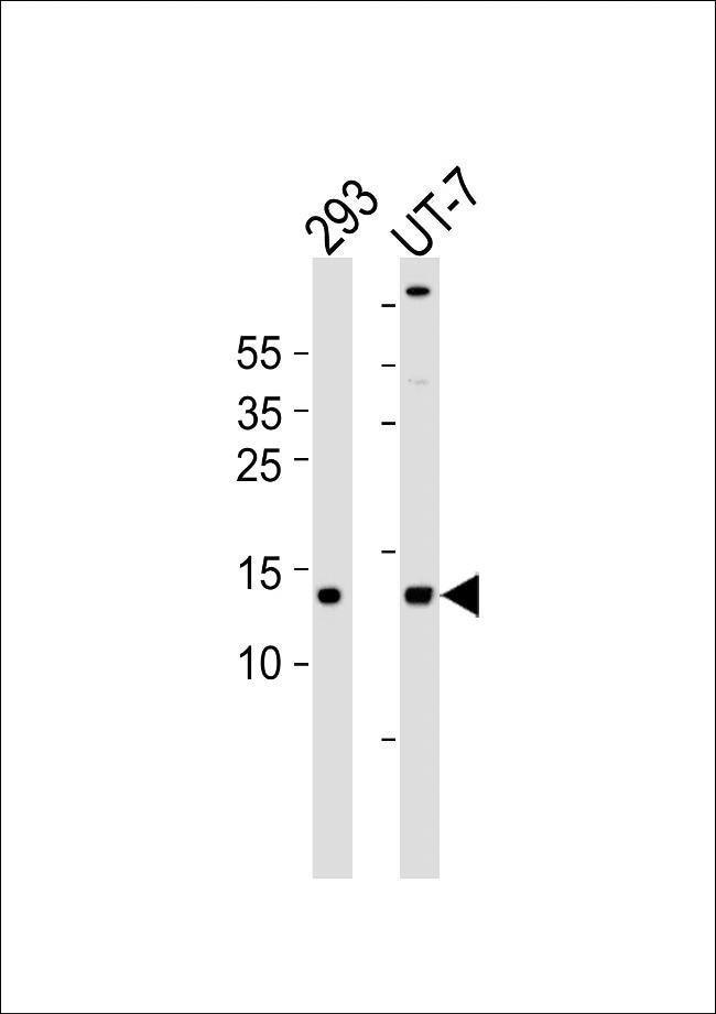 SSBP1 Rabbit anti-Human, Mouse, Rat, Polyclonal, Invitrogen 100 µL;