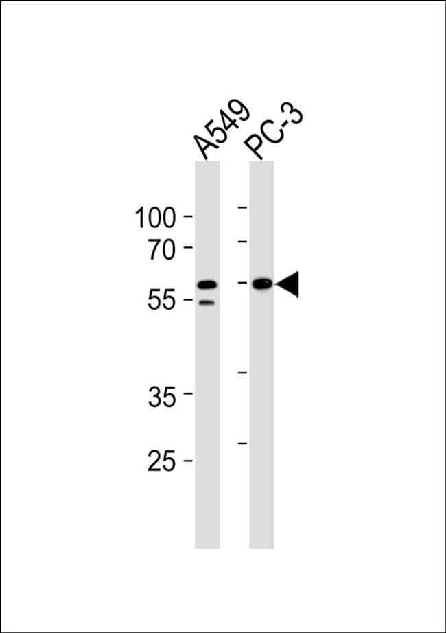 RSAD1 Rabbit anti-Human, Mouse, Rat, Polyclonal, Invitrogen 100 µL;