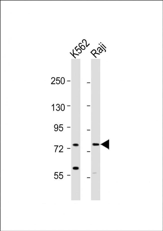 ABCB10 Rabbit anti-Human, Polyclonal, Invitrogen 400 µL; Unconjugated