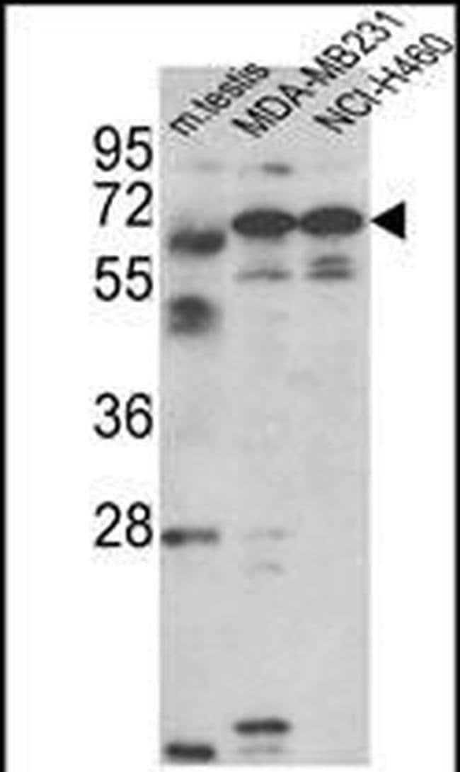 Fascin-3 Rabbit anti-Human, Mouse, Polyclonal, Invitrogen 400 µL;