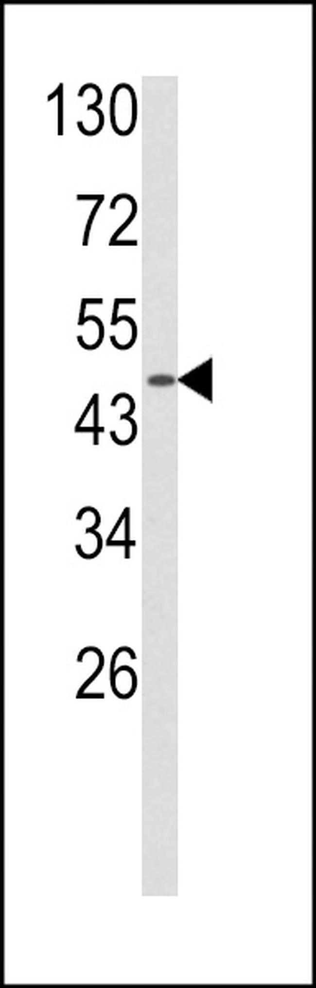 alpha-2b Adrenergic Receptor Rabbit anti-Human, Polyclonal, Invitrogen
