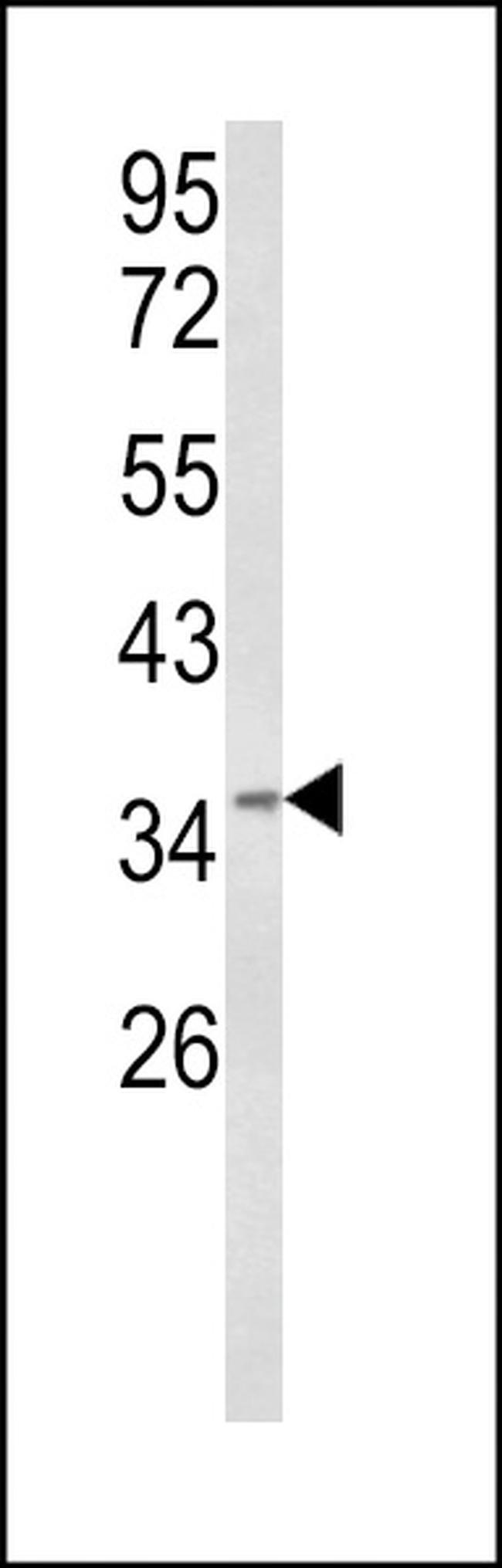 BABAM1 Rabbit anti-Human, Polyclonal, Invitrogen 400 µL; Unconjugated