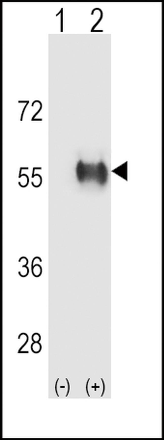 ALDH3B1 Rabbit anti-Human, Polyclonal, Invitrogen 400 µL; Unconjugated