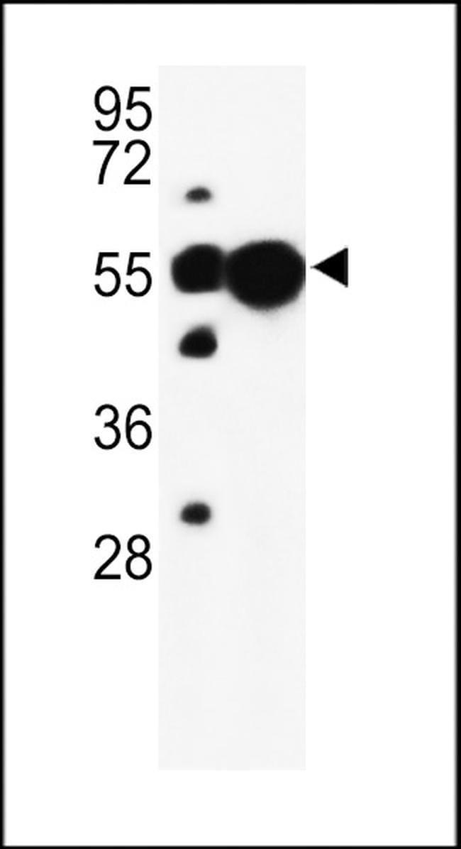 UBAP1 Rabbit anti-Human, Mouse, Polyclonal, Invitrogen 400 µL; Unconjugated