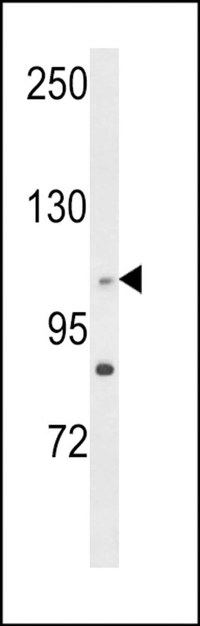 C14orf145 Rabbit anti-Human, Polyclonal, Invitrogen 400 µL; Unconjugated