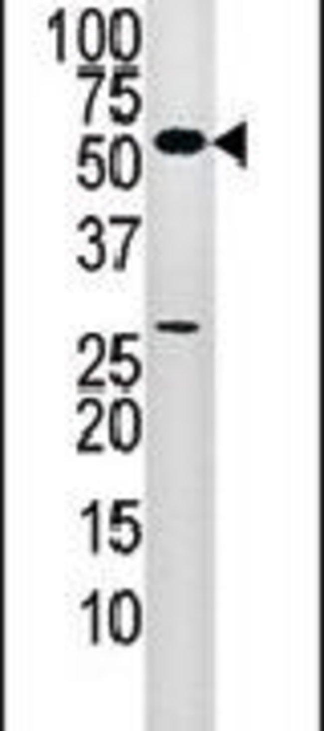 PANK2 Rabbit anti-Human, Mouse, Polyclonal, Invitrogen 400 µL; Unconjugated