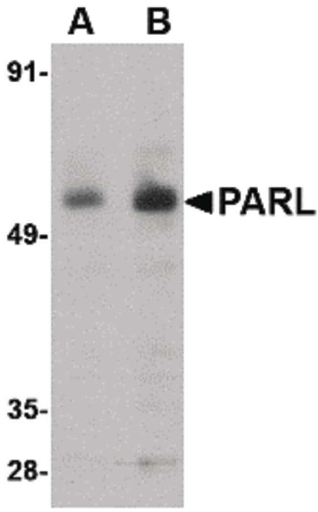 PARL Rabbit anti-Human, Mouse, Rat, Polyclonal, Invitrogen 100 µg;