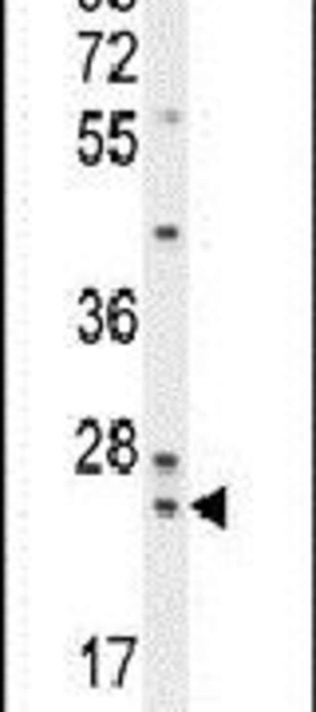 ZG16B Rabbit anti-Human, Polyclonal, Invitrogen 400 µL; Unconjugated