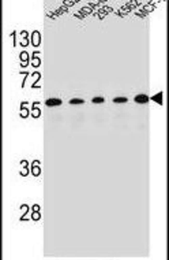 PAX1 Rabbit anti-Human, Polyclonal, Invitrogen 400 µL; Unconjugated