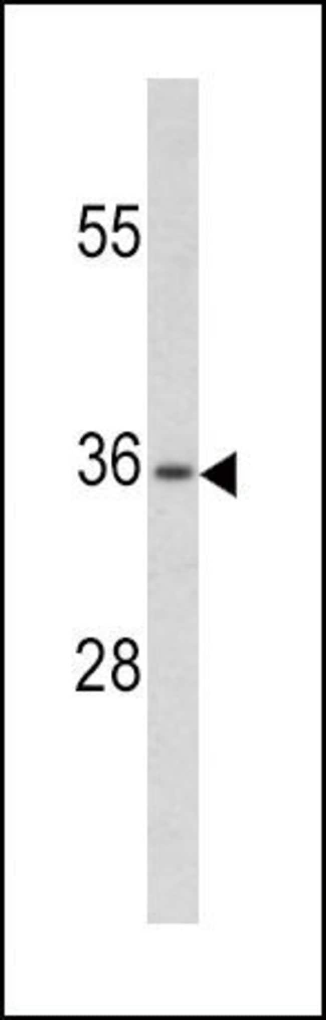PAX4 Rabbit anti-Human, Polyclonal, Invitrogen 400 µL; Unconjugated