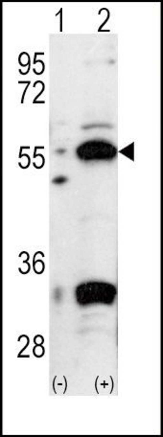 PDHX Rabbit anti-Human, Mouse, Polyclonal, Invitrogen 400 µL; Unconjugated