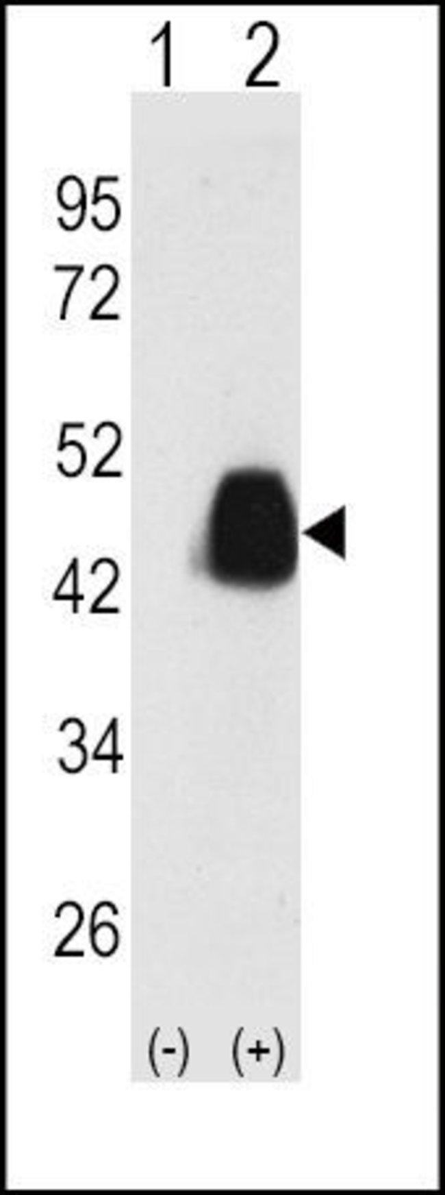 PDHX Rabbit anti-Human, Polyclonal, Invitrogen 400 µL; Unconjugated