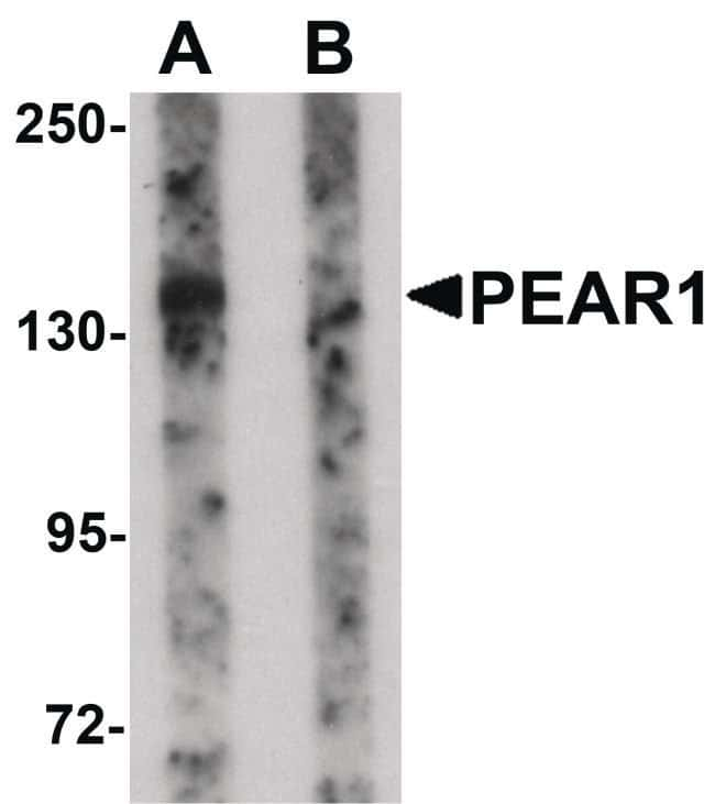 PEAR1 Rabbit anti-Human, Mouse, Rat, Polyclonal, Invitrogen 100 µg;