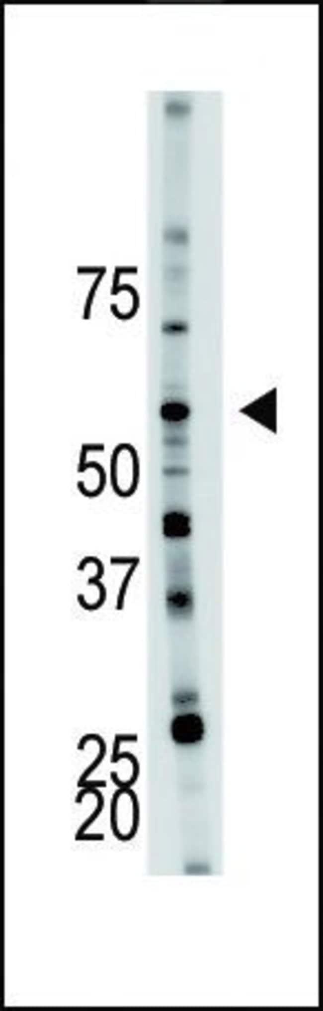 PFKFB4 Rabbit anti-Human, Mouse, Polyclonal, Invitrogen 400 µL; Unconjugated