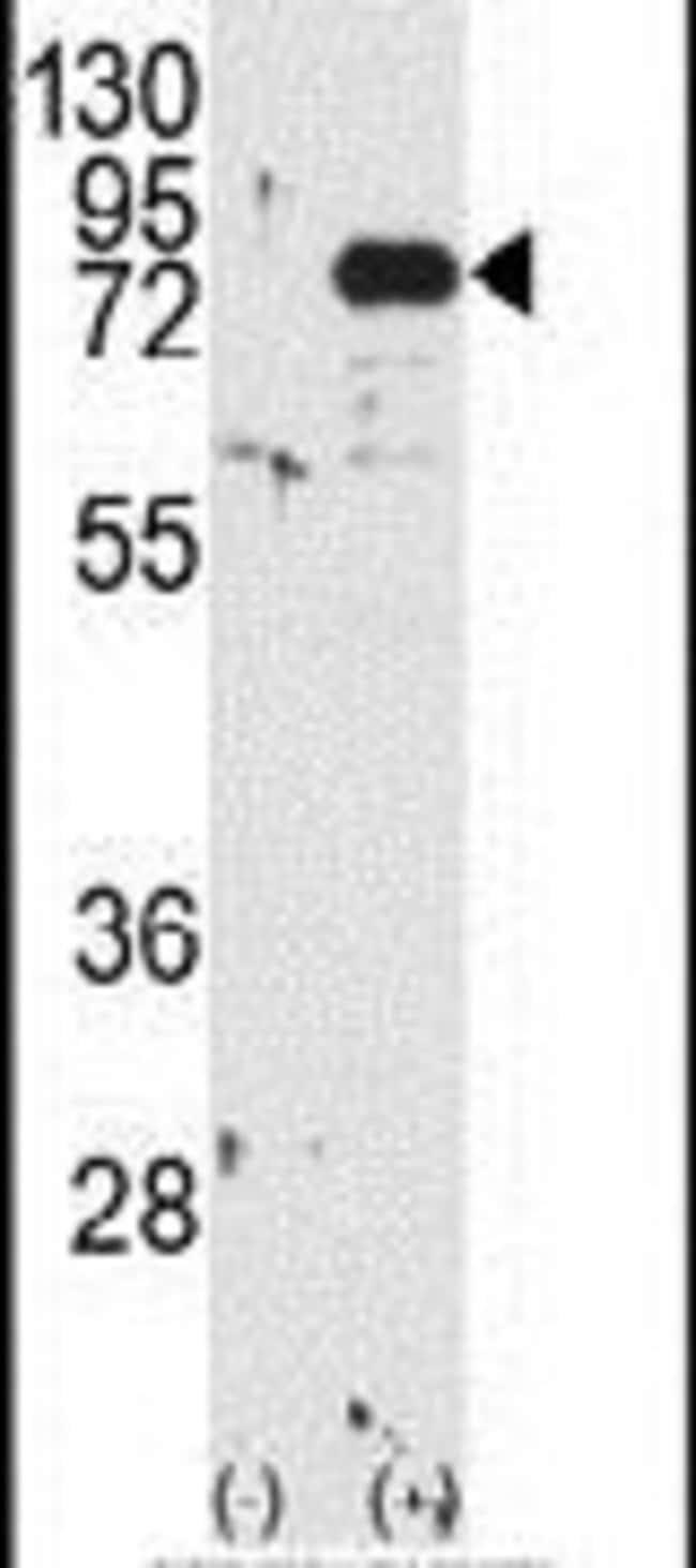 PKC beta-1,2 Rabbit anti-Human, Polyclonal, Invitrogen 400 µL; Unconjugated