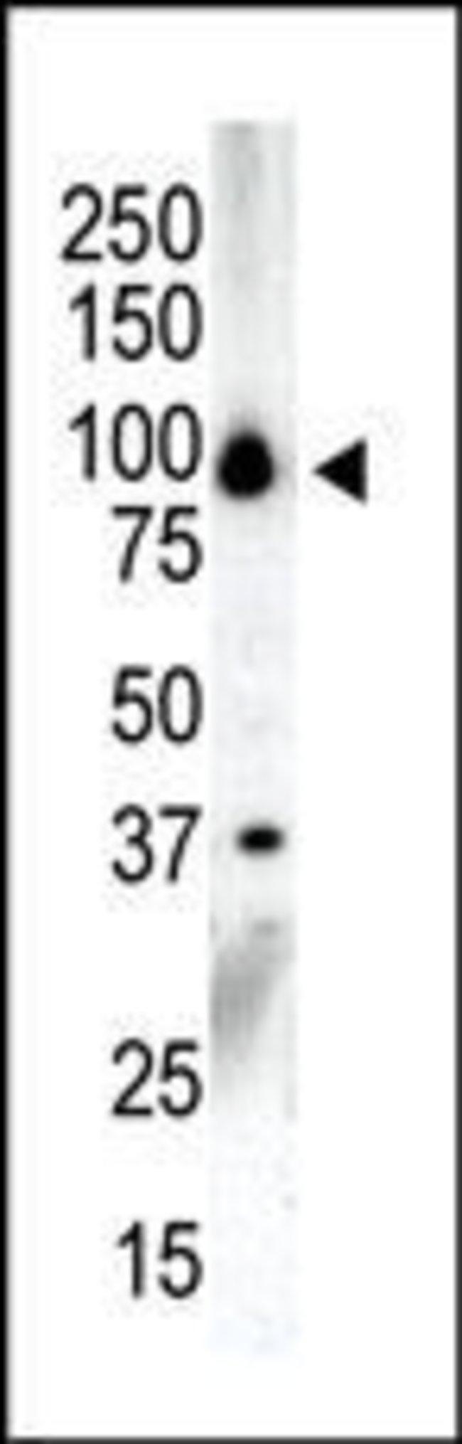 PRKD3 Rabbit anti-Human, Polyclonal, Invitrogen 400 µL; Unconjugated