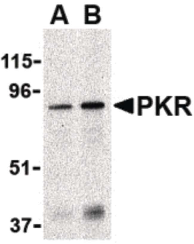 PKR Rabbit anti-Human, Rat, Polyclonal, Invitrogen 100 µg; Unconjugated