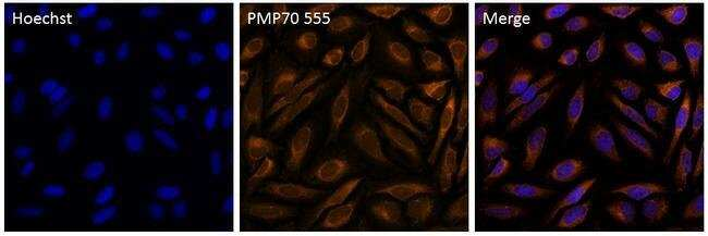 PMP70 Rabbit anti-Human, Mouse, Rat, Alexa Fluor(T) 555, Polyclonal, Invitrogen