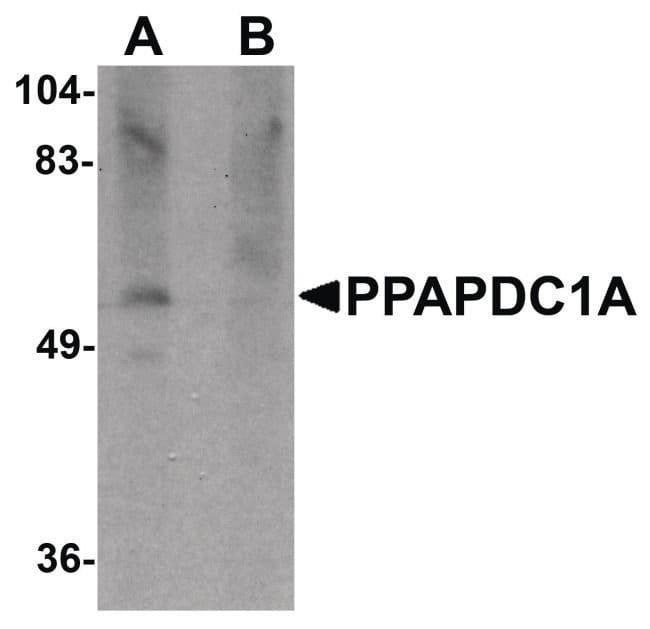 PPAPDC1A Rabbit anti-Human, Mouse, Rat, Polyclonal, Invitrogen 100 µg;