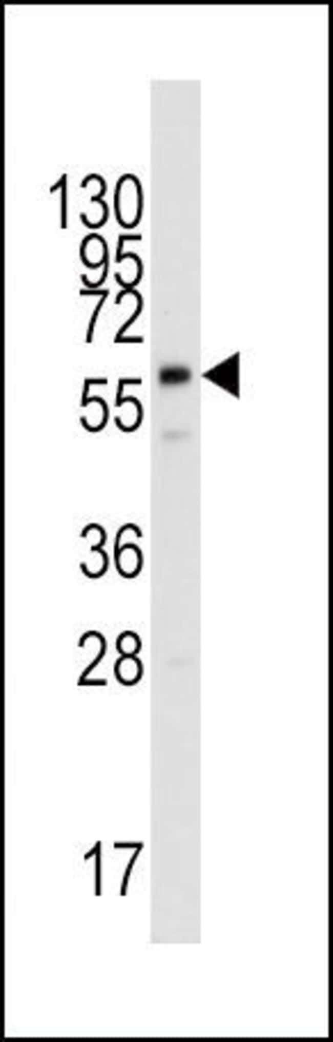 PPAT Rabbit anti-Human, Polyclonal, Invitrogen 400 µL; Unconjugated