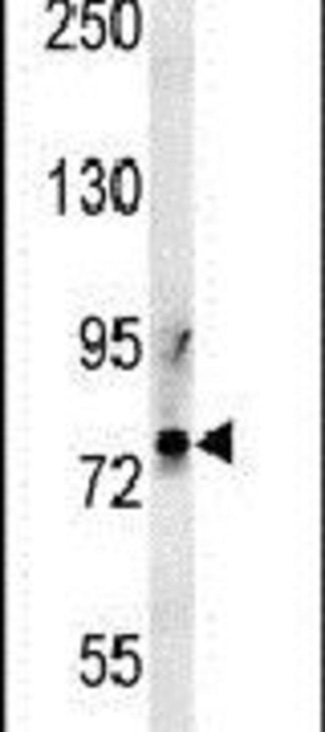 PRG2 Rabbit anti-Human, Polyclonal, Invitrogen 400 µL; Unconjugated