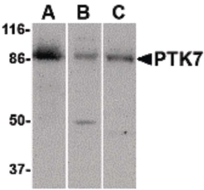PTK7 Rabbit anti-Human, Mouse, Rat, Polyclonal, Invitrogen 100 µg;