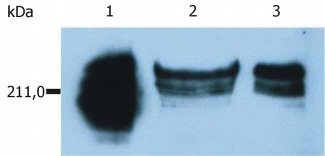 CD45RA Mouse anti-Human, Clone: MEM-56, Invitrogen 100 μg; Unconjugated:Antibodies