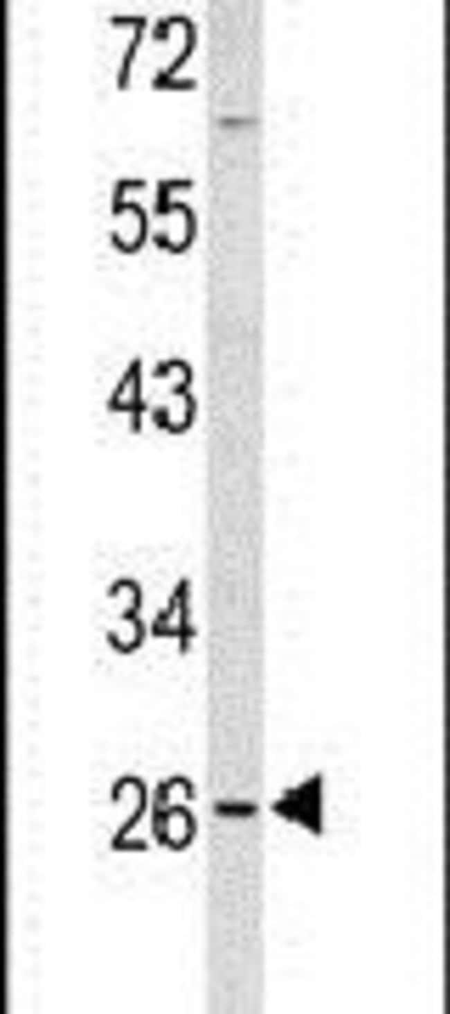 PXMP4 Rabbit anti-Human, Mouse, Polyclonal, Invitrogen 400 µL; Unconjugated