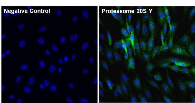 PSMB6 Rabbit anti-Bovine, Human, Mouse, Polyclonal, Invitrogen 100 µg;