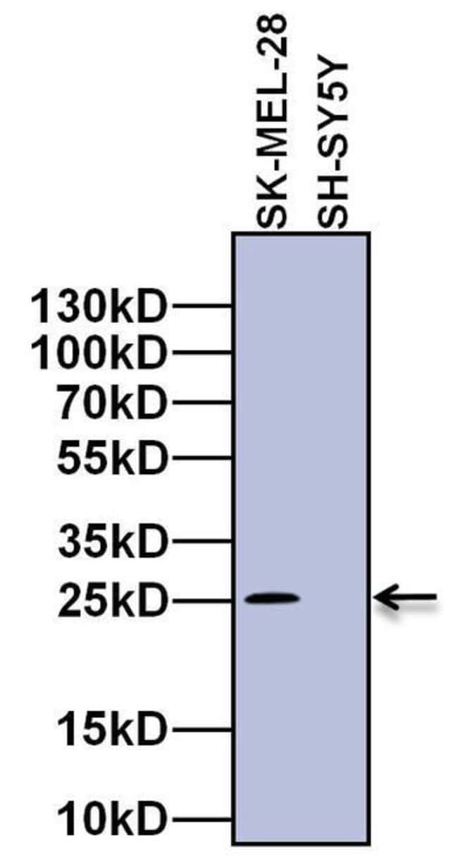 RAB27A Mouse anti-Human, Clone: 4D3F11, Invitrogen 100 µg; Unconjugated