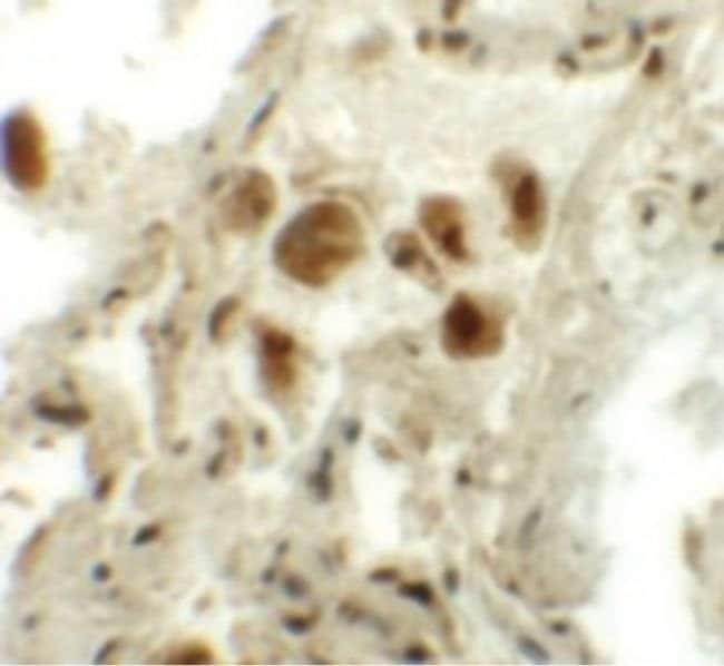RASSF10 Rabbit anti-Human, Polyclonal, Invitrogen 100 µg; Unconjugated