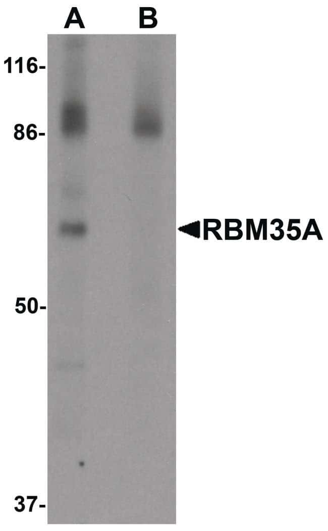 ESRP1 Rabbit anti-Human, Mouse, Rat, Polyclonal, Invitrogen 100 µg;