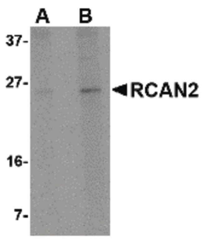 RCAN2 Rabbit anti-Human, Mouse, Rat, Polyclonal, Invitrogen 100 µg;