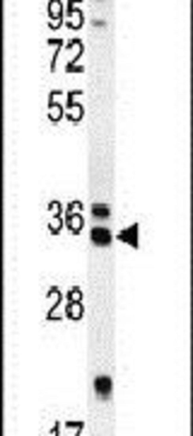 REEP4 Rabbit anti-Human, Mouse, Polyclonal, Invitrogen 400 µL; Unconjugated