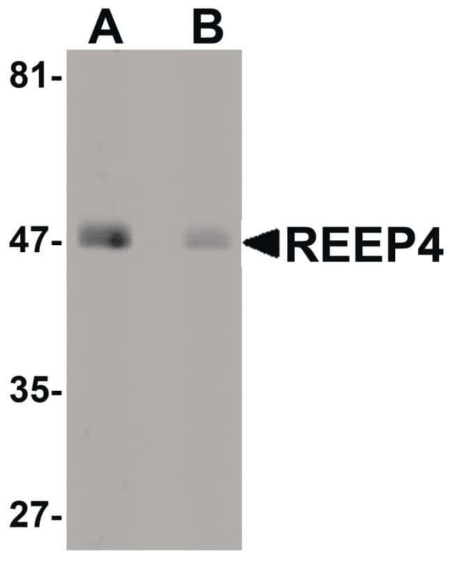 REEP4 Rabbit anti-Human, Mouse, Rat, Polyclonal, Invitrogen 100 µg;