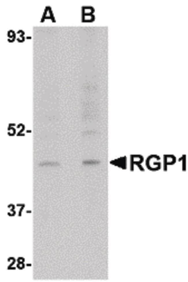RGP1 Rabbit anti-Human, Mouse, Rat, Polyclonal, Invitrogen 100 µg;