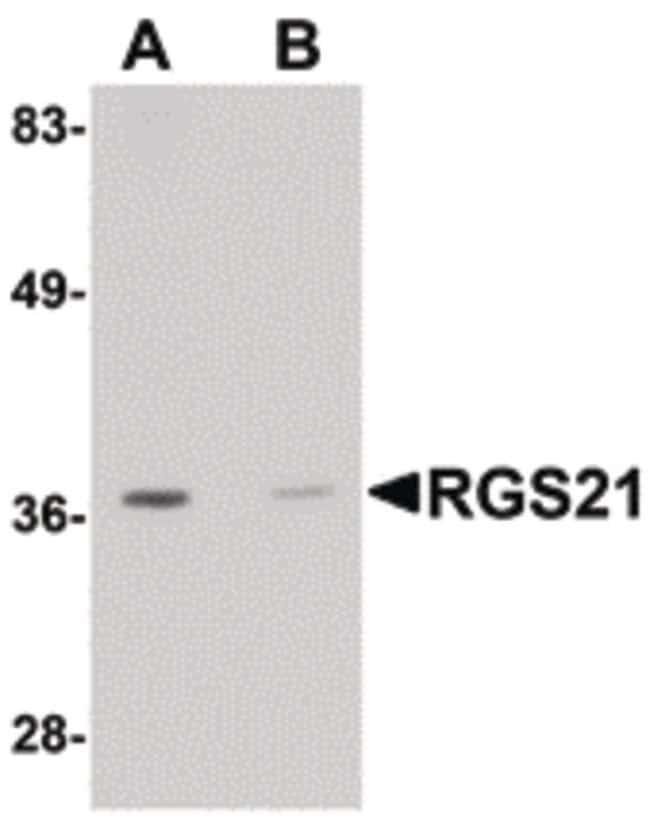 RGS21 Rabbit anti-Human, Polyclonal, Invitrogen 100 µg; Unconjugated