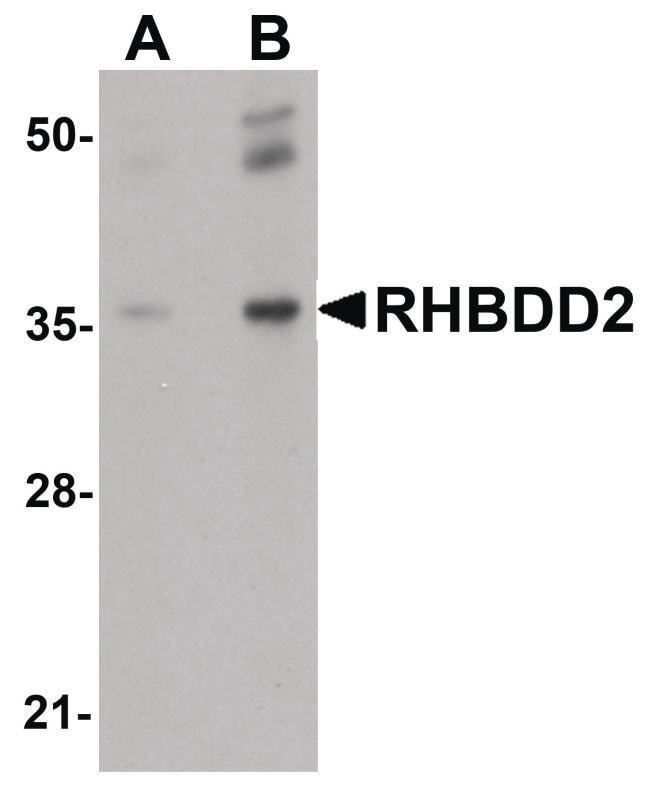 RHBDD2 Rabbit anti-Human, Mouse, Rat, Polyclonal, Invitrogen 100 µg;