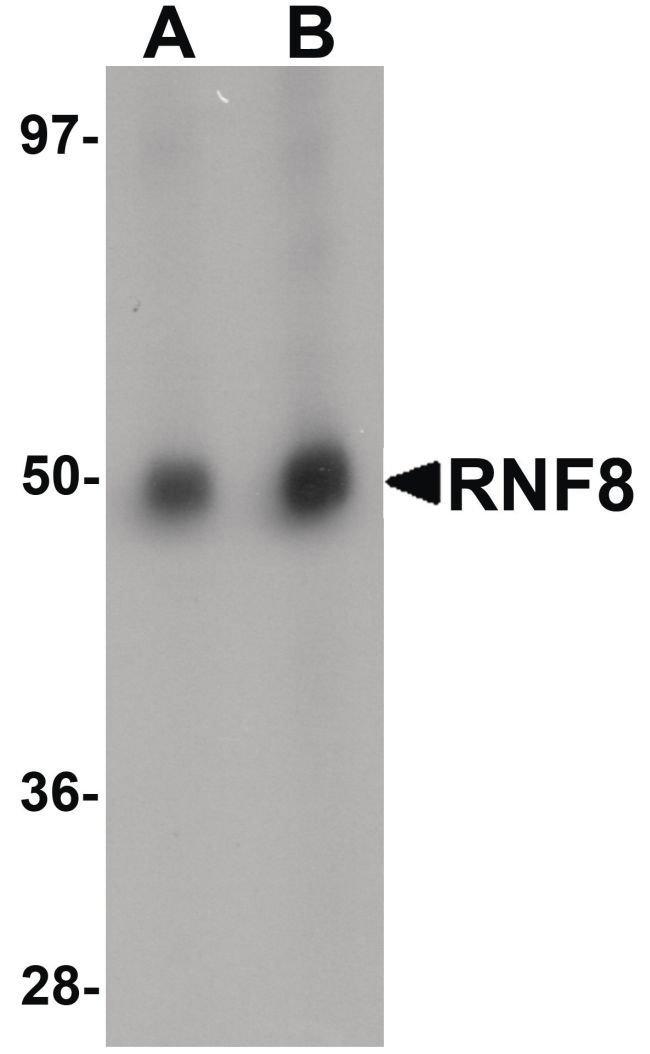 RNF8 Rabbit anti-Human, Mouse, Rat, Polyclonal, Invitrogen 100 µg;