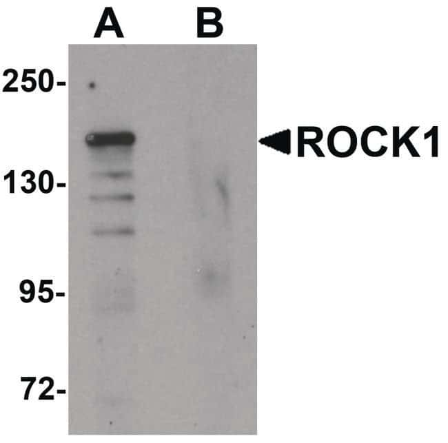 ROCK1 Rabbit anti-Human, Mouse, Rat, Polyclonal, Invitrogen 100 µg;